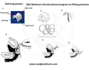 Gehrung fitting pessary